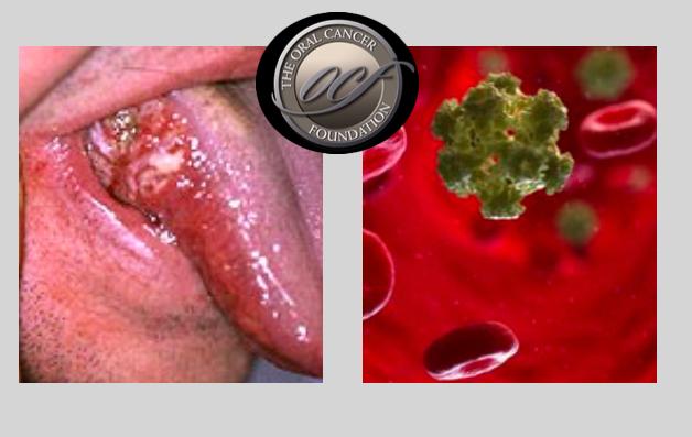 Papilloma gengivale cause, Schistosomiasis granuloma - Papiloma gengivale