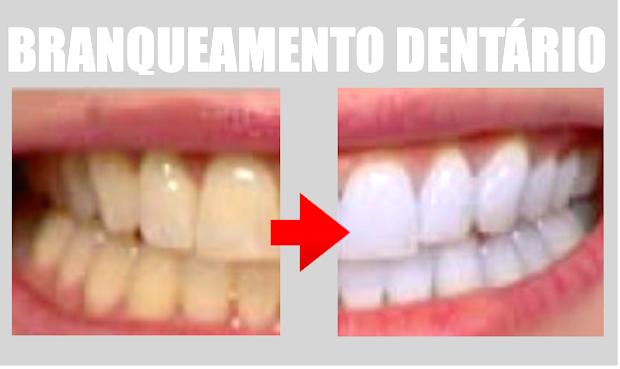 Branqueamento Dentario Futuro Brilhante